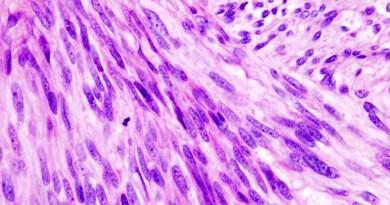 tumor estroma gastrointestinal
