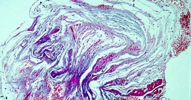fibrosis endomiocardica