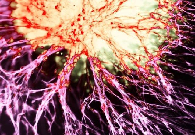 migracion neuronal