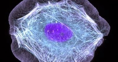 miopatía nemalínica típica