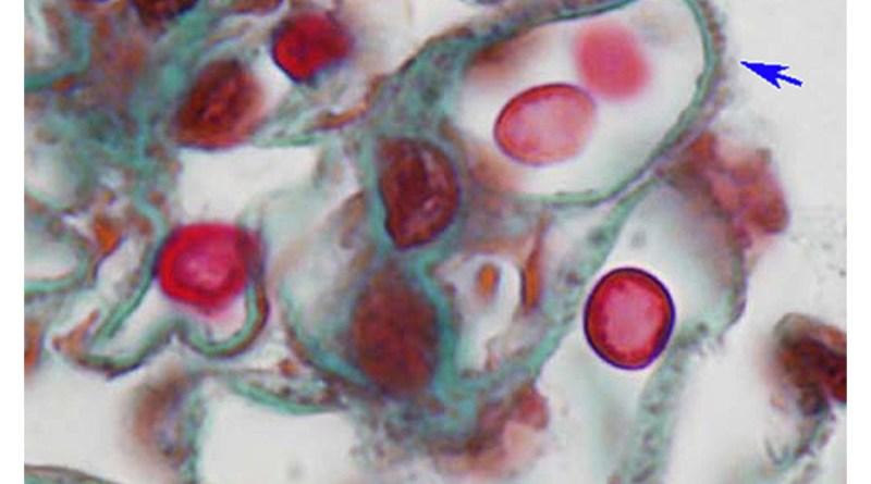 nefropatía membranosa congénita
