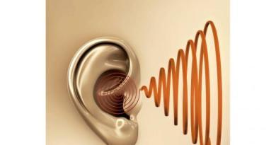 Neuropatía con discapacidad auditiva