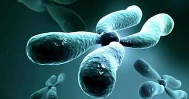 Neuropatía sensitiva y autonómica hereditaria ligada al X con sordera