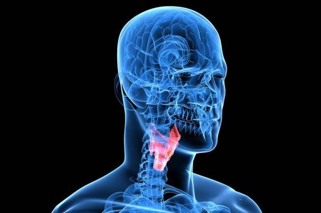 Parálisis laríngea - deficiencia intelectual