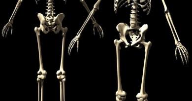 Osteólisis multicéntrica carpotarsal con o sin nefropatía
