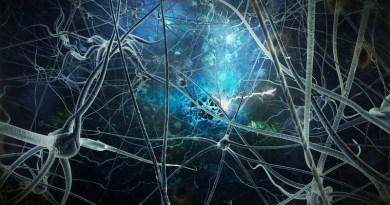 Parálisis supranuclear progresiva - afasia progresiva no fluida