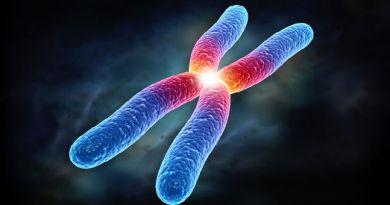 Plagiocefalia - deficiencia intelectual ligada al X