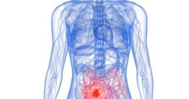 Pseudomixoma peritoneal