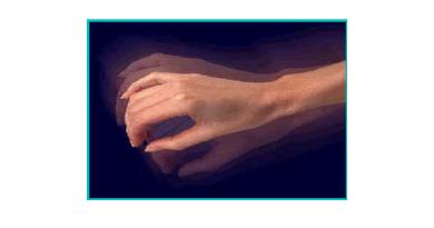 Temblor ortostático primario