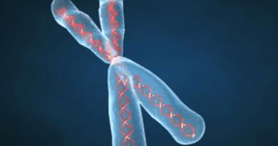 Síndrome de alfa talasemia-discapacidad intelectual ligada al X