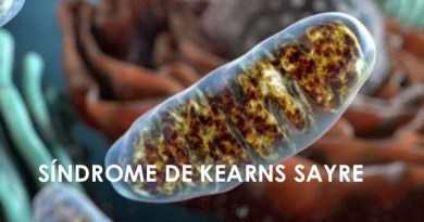 Síndrome de Kearns-Sayre