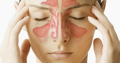 Síndrome de malformación blefaro-naso-facial