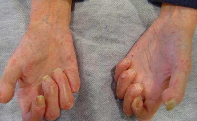Esclerodermia Femexer