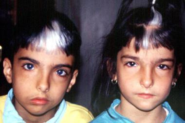 Síndrome de Waardenburg-Shah