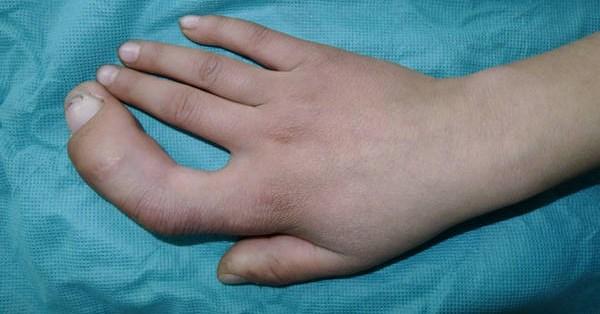 Síndrome de pulgar trifalángico - polisindactilia