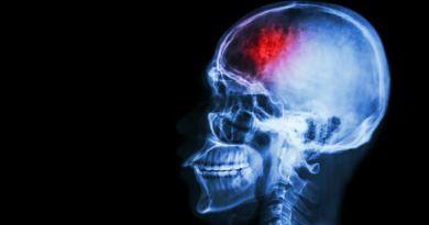 Síndrome hemidistonia-hemiatrofia