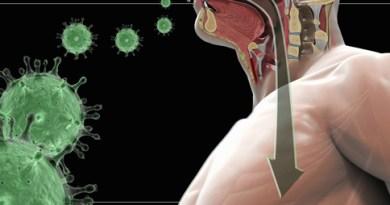 Síndrome respiratorio agudo grave
