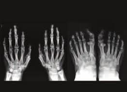 Síndrome trico-rino-falángico tipos 1 y 3