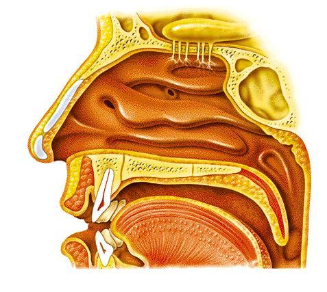 Angiofibroma nasofaríngeo juvenil