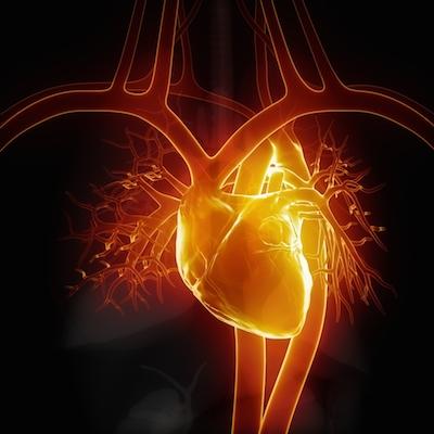 Túnel ventrículo izquierdo-aorta