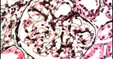 Glomerulopatía inmunotactoide