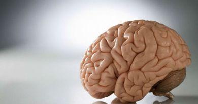 Hidrocefalia - estatura alta - hiperlaxitud