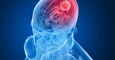 Meduloblastoma con nodularidad extensa