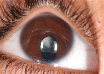 Microcórnea - glaucoma - ausencia de senos frontales