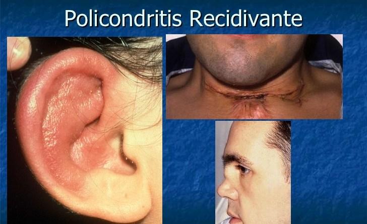 Policondritis recidivante