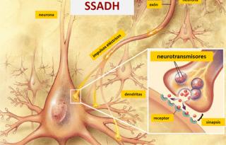 Deficiencia de semialdehído succínico deshidrogenasa