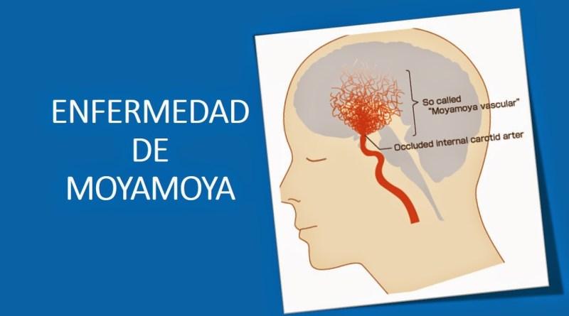 Enfermedad de Moyamoya