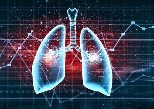 Enfermedad veno-oclusiva pulmonar y/o hemangiomatosis capilar pulmonar