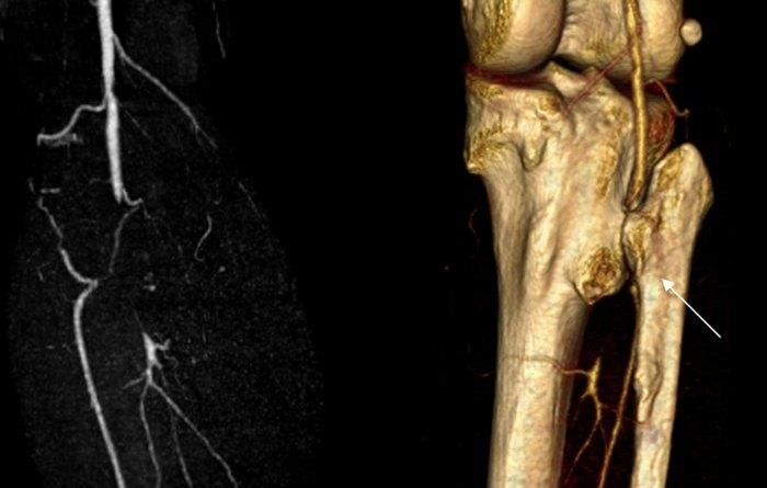 Síndrome de calcificación arterial y articular múltiple hereditaria