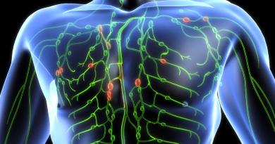 Experiencia clínica del linfoma primario del sistema nervioso central en población latinoamericana