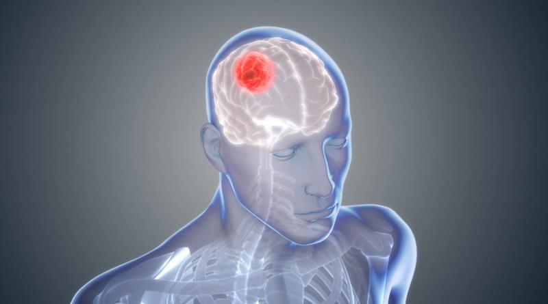 Inmunoterapia y cirugía demuestran efectos beneficiosos en el glioblastoma