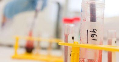 La Universidad de Salud y Ciencia de Oregón participará en un estudio para predecir la respuesta al tratamiento para el cáncer raro