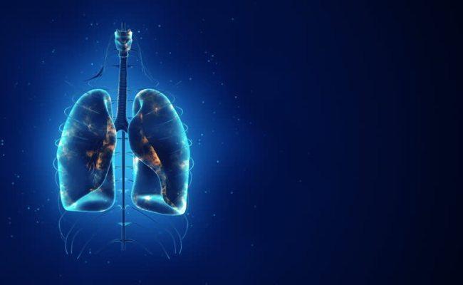 Enfermedad Pulmonar Intersticial Rara Es Una Mala Noticia