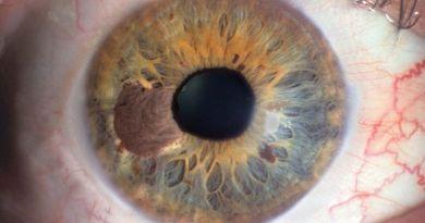 Se propone un nuevo proyecto de ley para financiar la investigación del misterio del melanoma ocular en Carolina del Norte