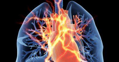Un estudio sugiere que las tasas de supervivencia para el pH asociado con la enfermedad pulmonar son similares a la mala supervivencia en la HIP