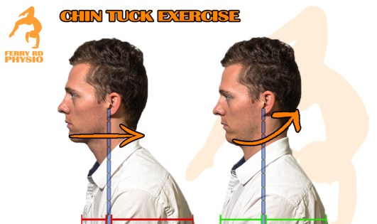 Neck Retraction Exercise, Pain free travel tips, physio tips