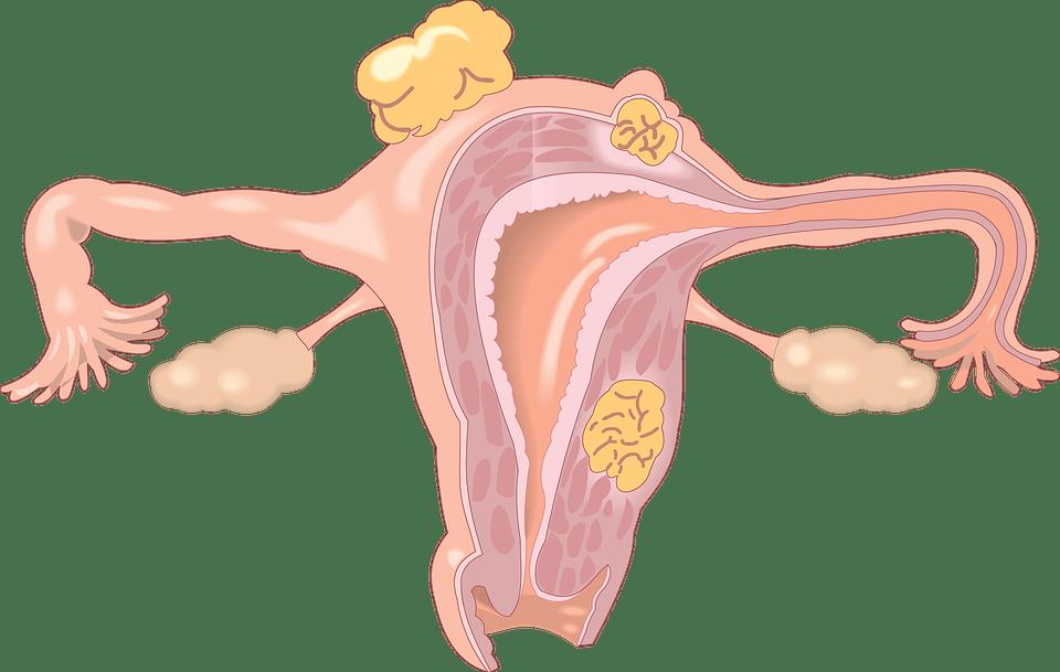 ✓ Obstrucción de Trompas y Quedar embarazada