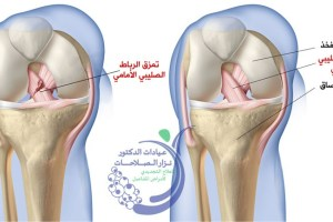 علاج قطع الرباط الصليبي الجراحي والغير جراحي