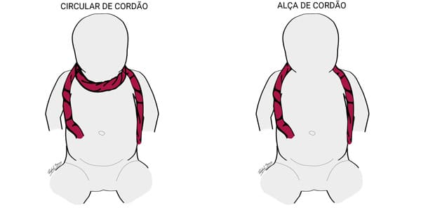 Cordão Enrolado no Pescoço - Circular de Cordão e Alça de Cordão