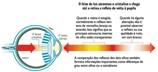 teste-do-olhinho1