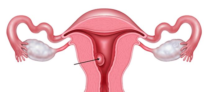 Polipo uterino