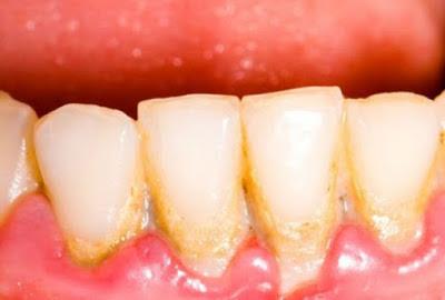 Έχεις πλάκα στα δόντια; Έτσι θα την εξαφανίσεις χωρίς να πας οδοντίατρο!
