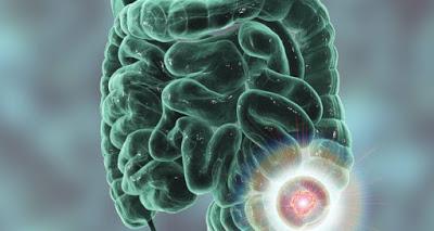 Καρκίνος εντέρου: Το διατροφικό «μυστικό»
