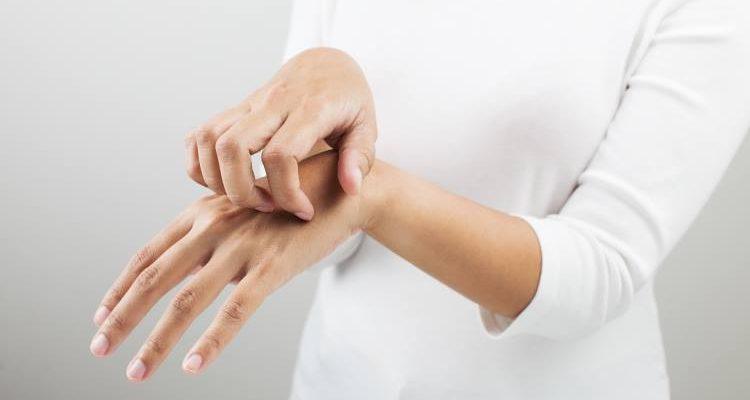 Τις περισσότερες φορές, θα εμφανίσετε κάποια κοκκινίλα, λίγο πρήξιμο και φαγούρα. Αυτά τα συμπτώματα αντιμετωπίζονται συνήθως εύκολα με ειδικές κρέμες και αντιισταμινικά.