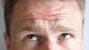 Κοκκίνισμα στο πρόσωπο: Οι 7 «ένοχες» παθήσεις