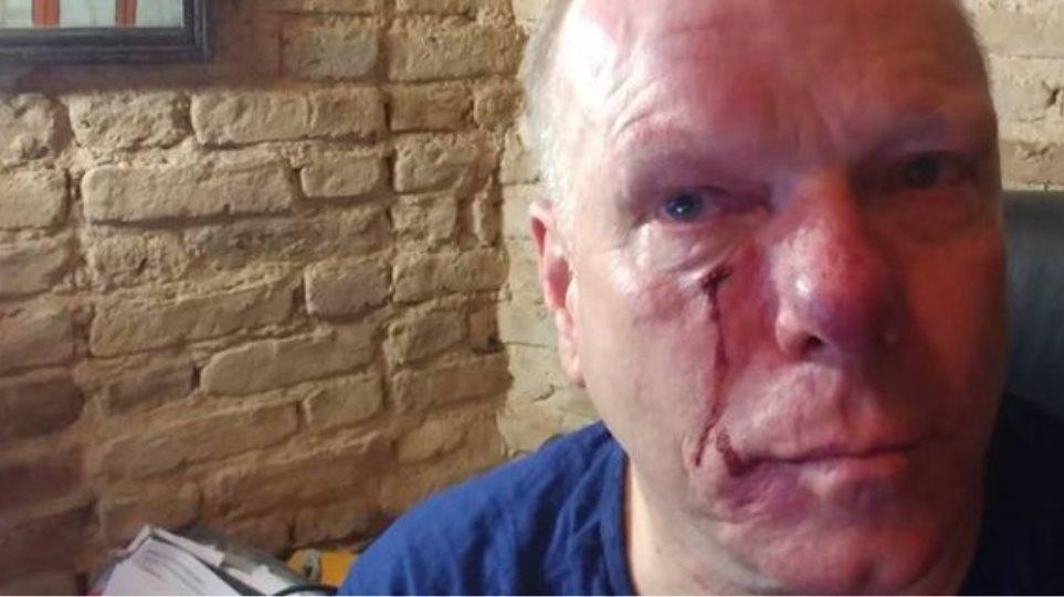 Θύμα ξυλοδαρμού έπεσε ο ξένος ανταποκριτής, Thomas Lacobi στο συλλαλητήριο για τη Μακεδονία